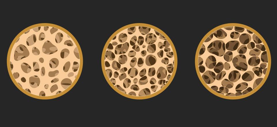 Osteoporose betyder, at vores knogler bliver mere porøse