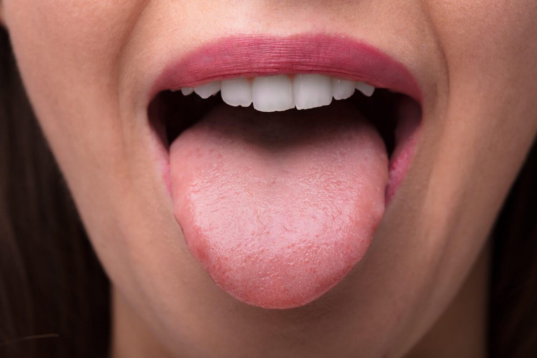 På tungen kræft Symptomer på